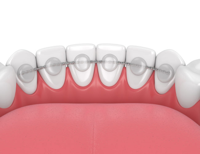 3d render of dental bonded retainer on lower jaw over white background