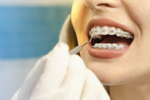 Closeup dental braces checkup , perfect white teeth with dental braces woman in half smile