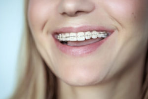 Braces, treatment for a crooked teeth, closeup photo of a beautiful smile of a young woman with white clean teeth, aesthetic dentistry and dental care concept