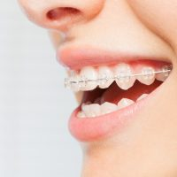 Side view picture of woman's smile with clear dental braces on teeth against blanked background